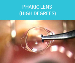 phakic_lens